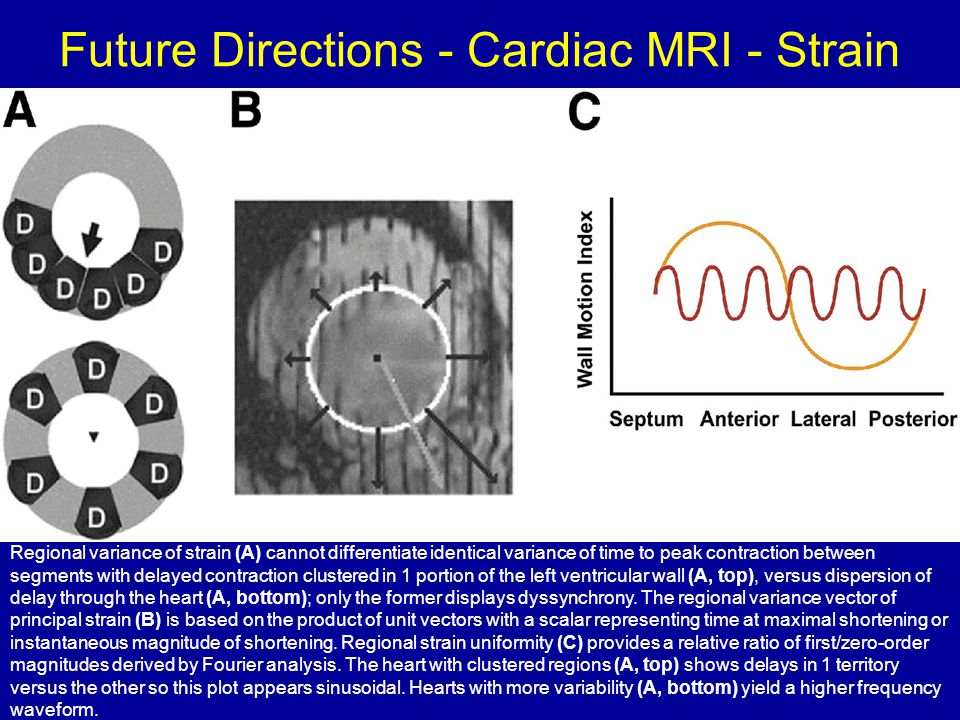 Future Directions - Cardiac MRI - Strain Regional variance of strain (A) cannot differentiate identical variance of time to peak contraction between s