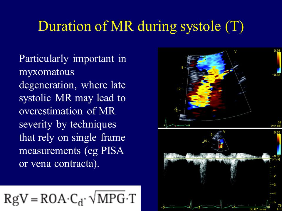 Harvard Medical School Duration of MR during systole (T) Particularly important in myxomatous degeneration, where late systolic MR may lead to overest