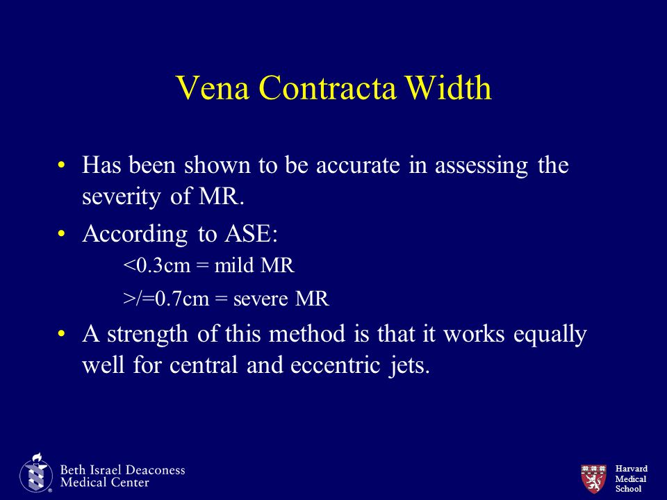 Harvard Medical School Vena Contracta Width Has been shown to be accurate in assessing the severity of MR. According to ASE: <0.3cm = mild MR >/=0.7cm