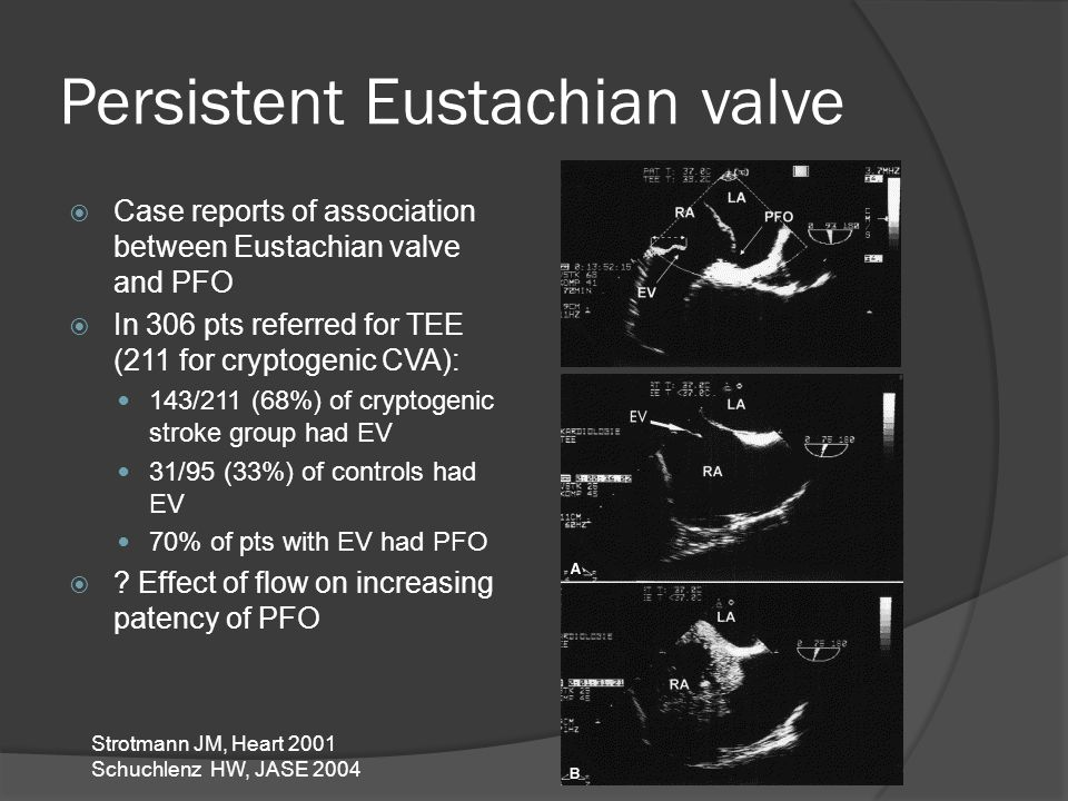 Persistent Eustachian valve  Case reports of association between Eustachian valve and PFO  In 306 pts referred for TEE (211 for cryptogenic CVA): 14