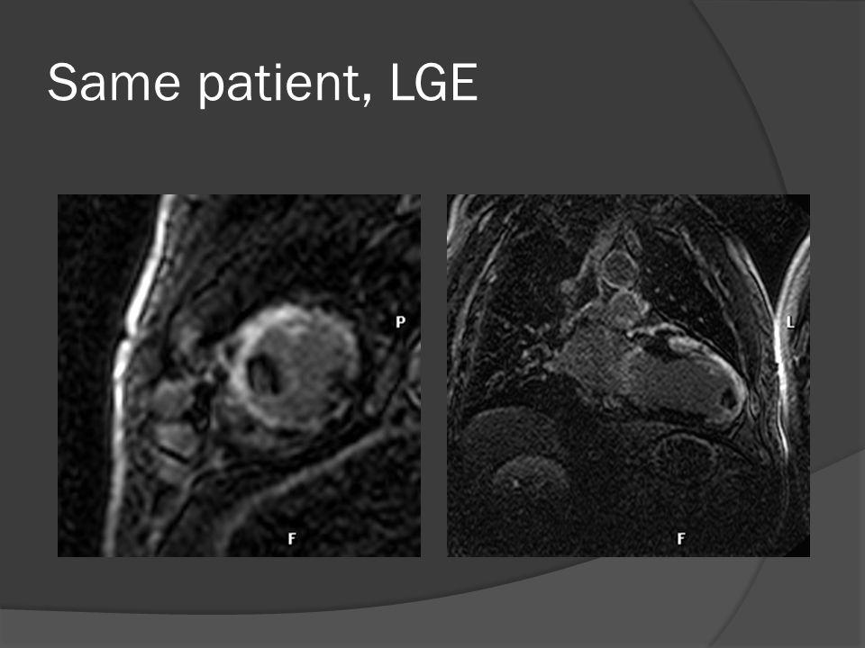 Same patient, LGE