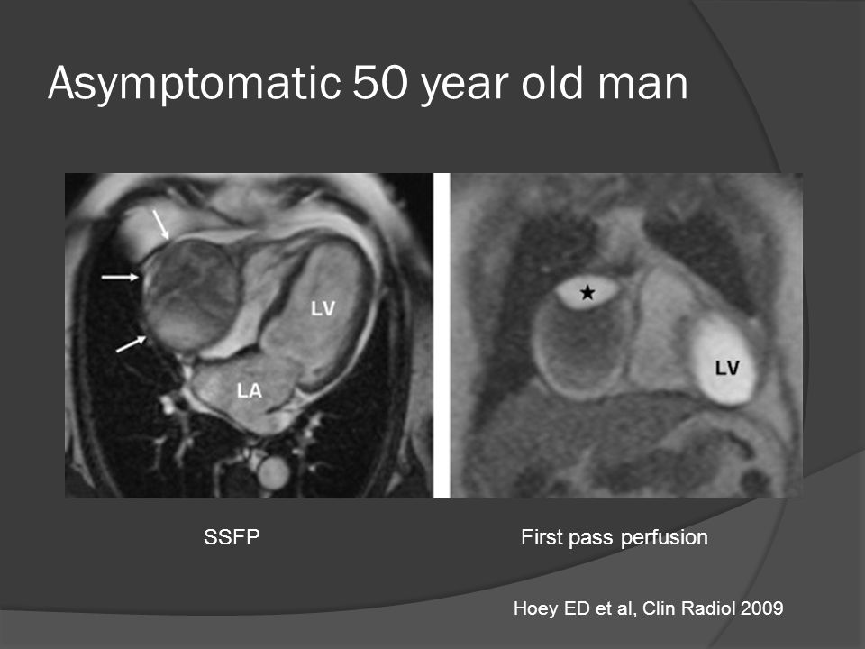 Asymptomatic 50 year old man SSFPFirst pass perfusion Hoey ED et al, Clin Radiol 2009