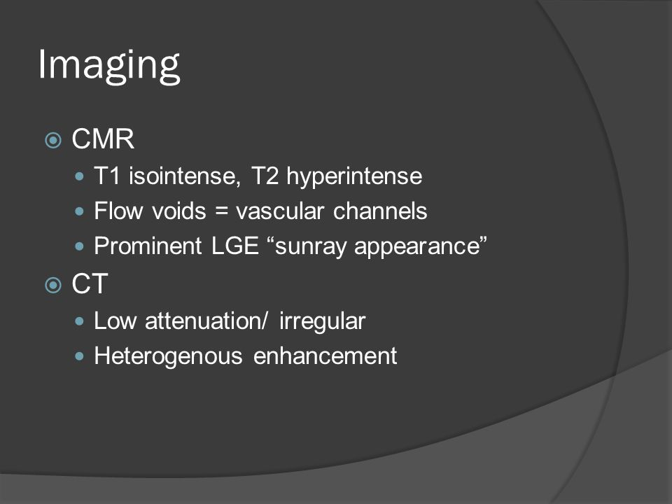"Imaging  CMR T1 isointense, T2 hyperintense Flow voids = vascular channels Prominent LGE ""sunray appearance""  CT Low attenuation/ irregular Heteroge"