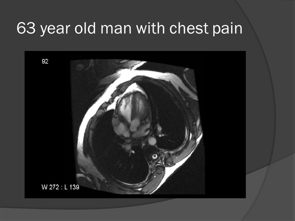 63 year old man with chest pain