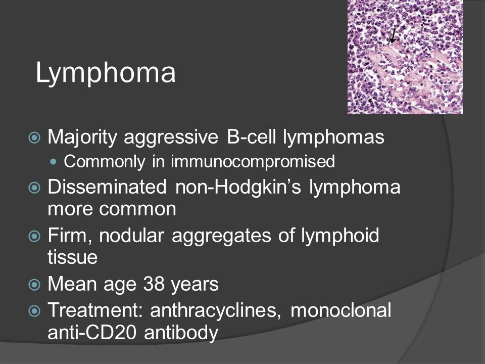Lymphoma  Majority aggressive B-cell lymphomas Commonly in immunocompromised  Disseminated non-Hodgkin's lymphoma more common  Firm, nodular aggreg