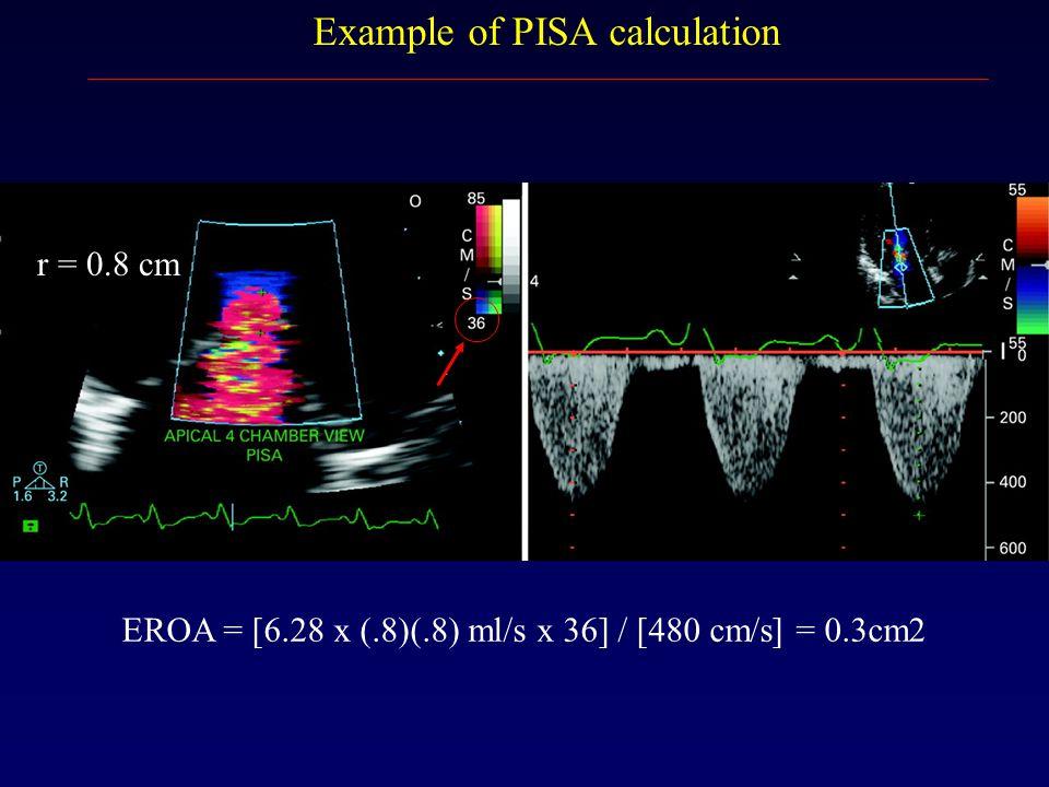 EROA = [6.28 x (.8)(.8) ml/s x 36] / [480 cm/s] = 0.3cm2 Example of PISA calculation r = 0.8 cm
