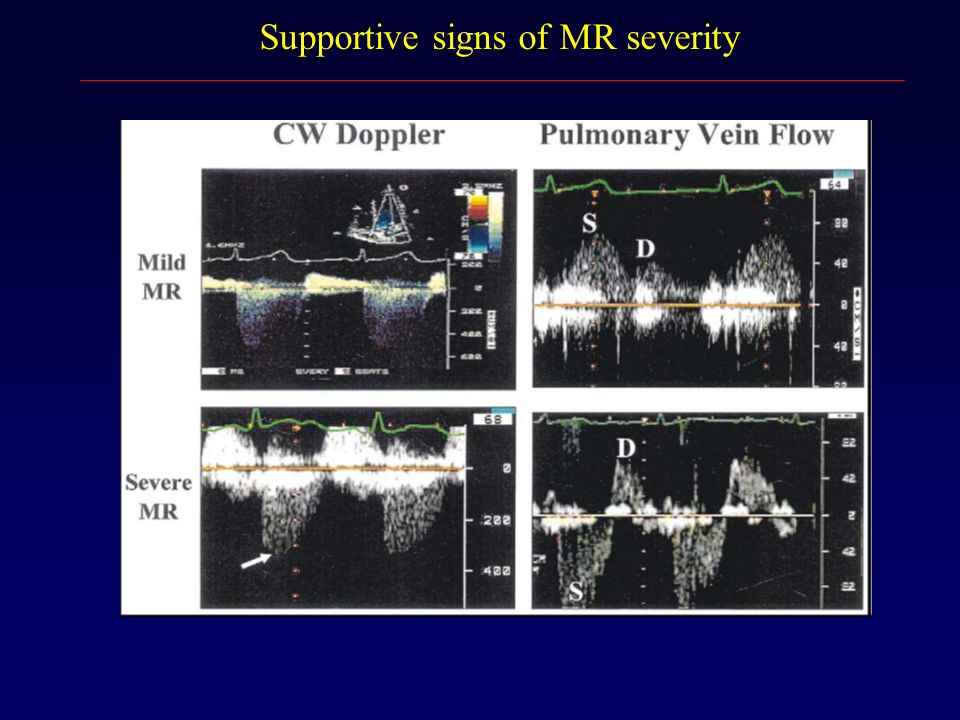 Supportive signs of MR severity