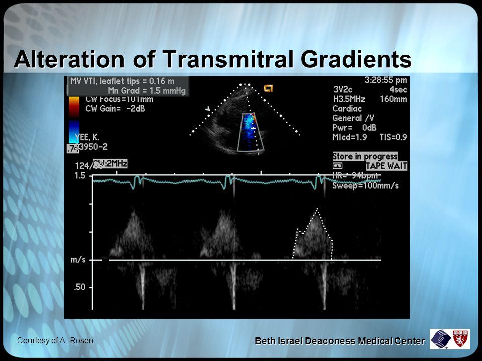 Beth Israel Deaconess Medical Center Alteration of Transmitral Gradients Courtesy of A. Rosen