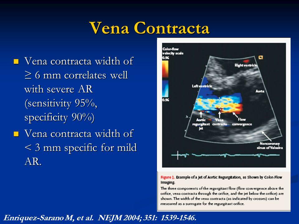 Vena Contracta Vena contracta width of ≥ 6 mm correlates well with severe AR (sensitivity 95%, specificity 90%) Vena contracta width of ≥ 6 mm correla