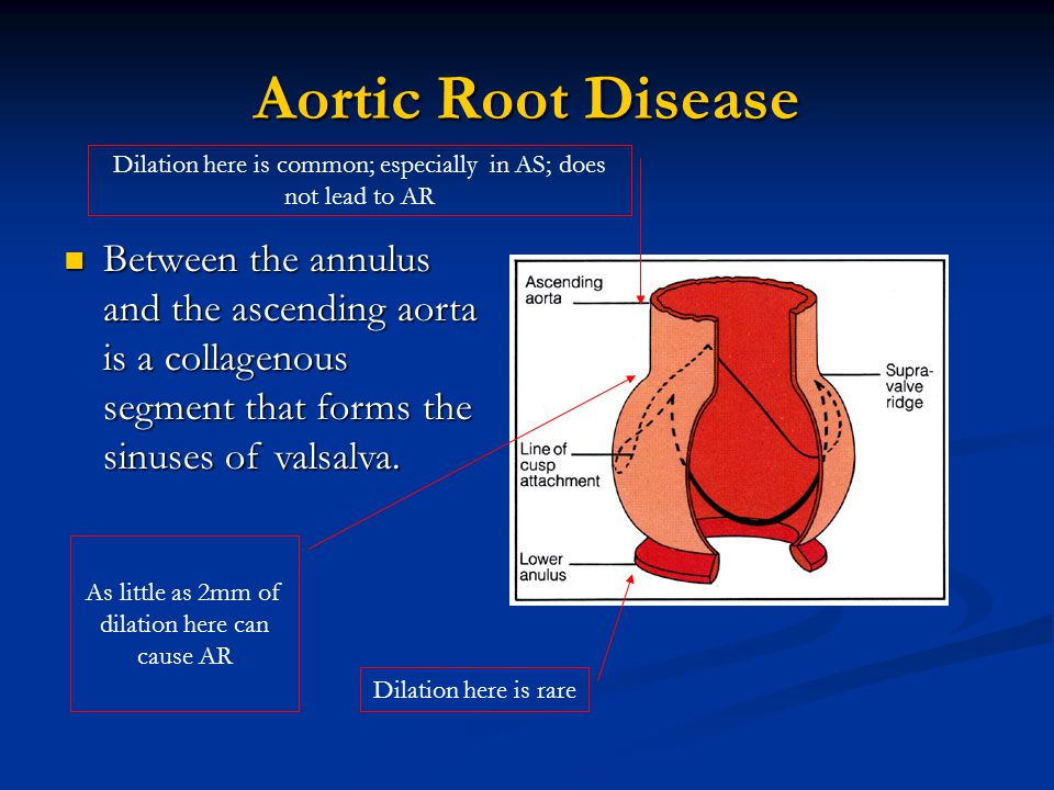 Aortic Root Disease Dilation here is rare As little as 2mm of dilation here can cause AR Dilation here is common; especially in AS; does not lead to A