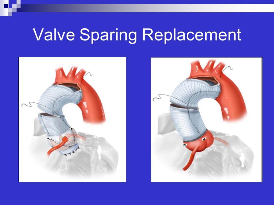 Valve Sparing Replacement