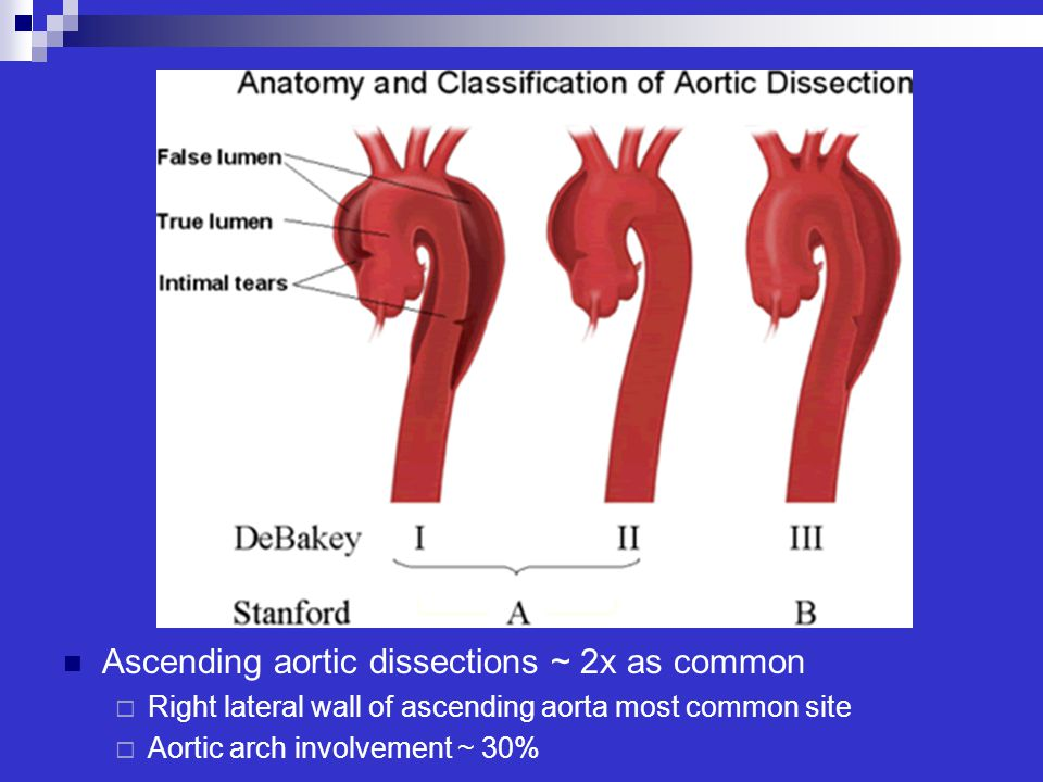 Ascending aortic dissections ~ 2x as common  Right lateral wall of ascending aorta most common site  Aortic arch involvement ~ 30%