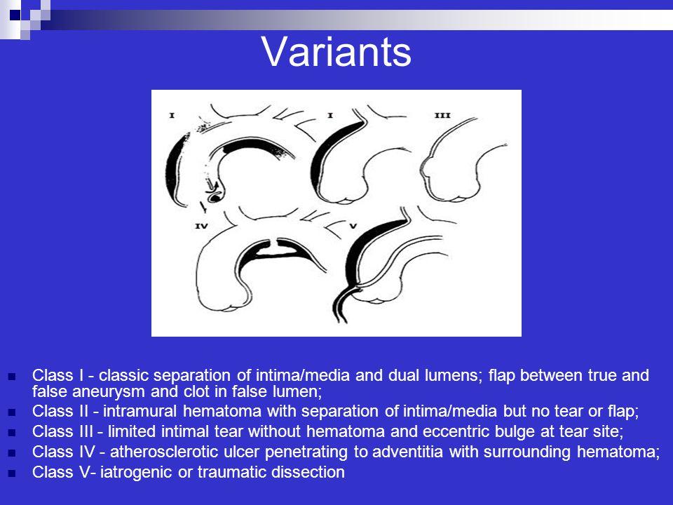 Variants Class I - classic separation of intima/media and dual lumens; flap between true and false aneurysm and clot in false lumen; Class II - intram