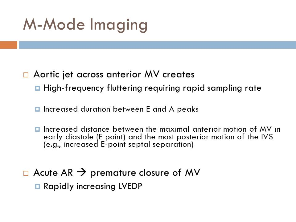 M-Mode Imaging  Aortic jet across anterior MV creates  High-frequency fluttering requiring rapid sampling rate  Increased duration between E and A