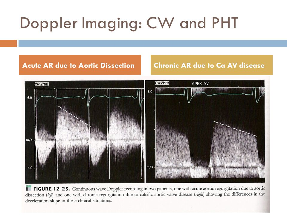 Doppler Imaging: CW and PHT Acute AR due to Aortic DissectionChronic AR due to Ca AV disease