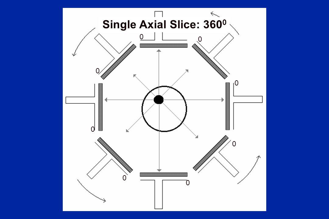 0 0 0 0 0 0 0 0 Single Axial Slice: 360 0