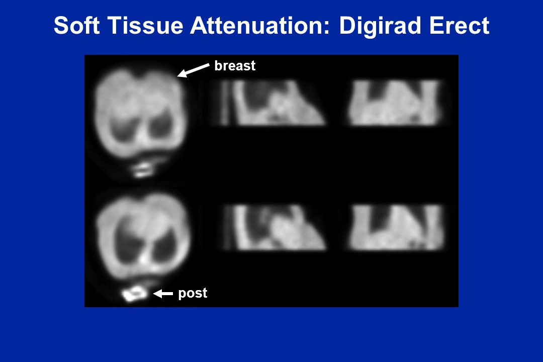 Soft Tissue Attenuation: Digirad Erect breast post