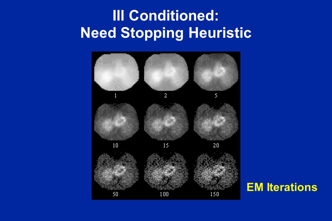 Ill Conditioned: Need Stopping Heuristic EM Iterations