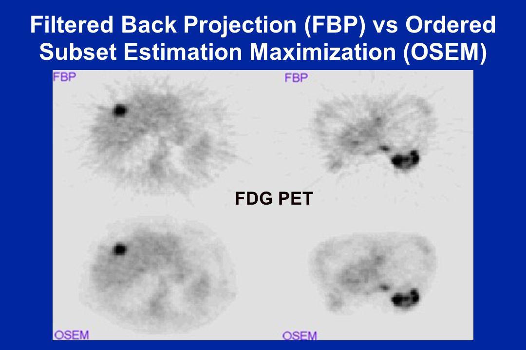Filtered Back Projection (FBP) vs Ordered Subset Estimation Maximization (OSEM) FDG PET
