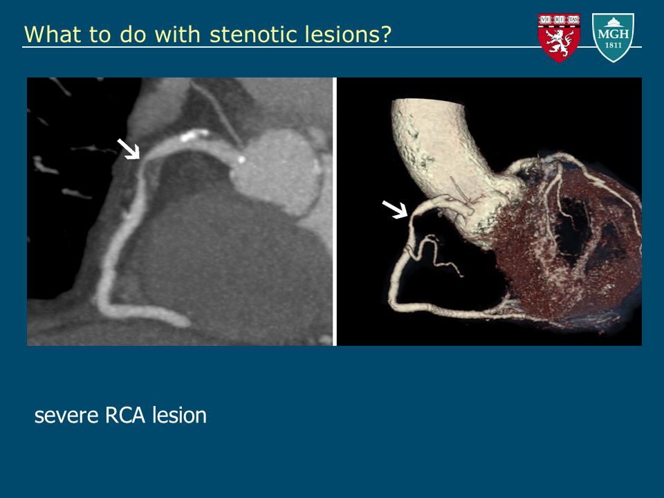 What to do with stenotic lesions severe RCA lesion