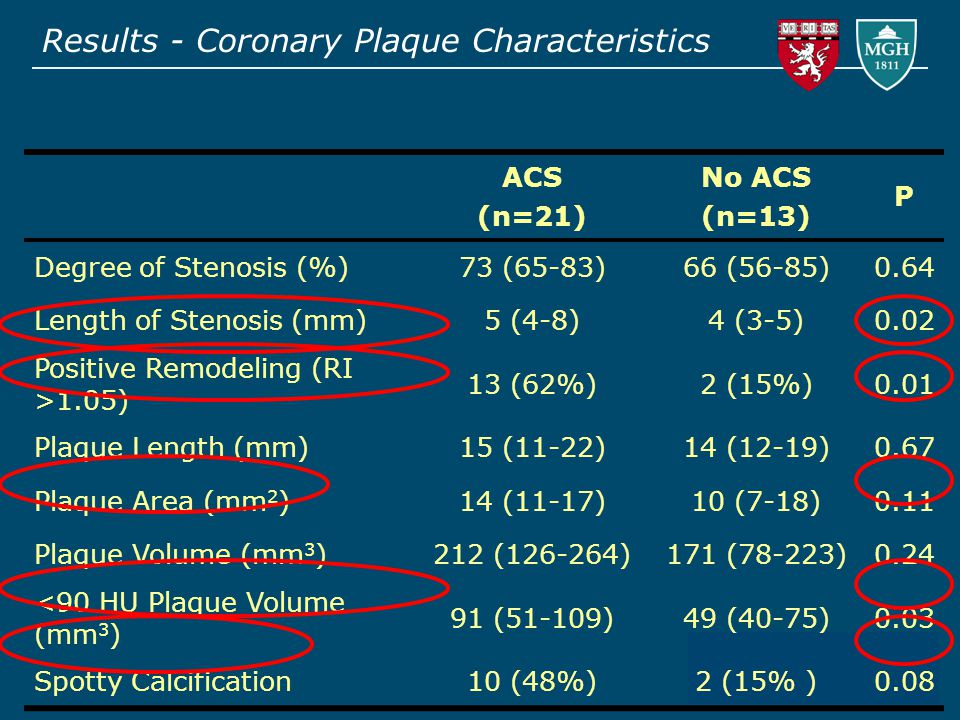 Results - Coronary Plaque Characteristics ACS (n=21) No ACS (n=13) P Degree of Stenosis (%)73 (65-83)66 (56-85)0.64 Length of Stenosis (mm)5 (4-8)4 (3-5)0.02 Positive Remodeling (RI >1.05) 13 (62%)2 (15%)0.01 Plaque Length (mm)15 (11-22)14 (12-19)0.67 Plaque Area (mm 2 )14 (11-17)10 (7-18)0.11 Plaque Volume (mm 3 )212 (126-264)171 (78-223)0.24 <90 HU Plaque Volume (mm 3 ) 91 (51-109)49 (40-75)0.03 Spotty Calcification10 (48%)2 (15% )0.08