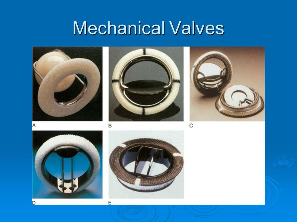 Mechanical Valves