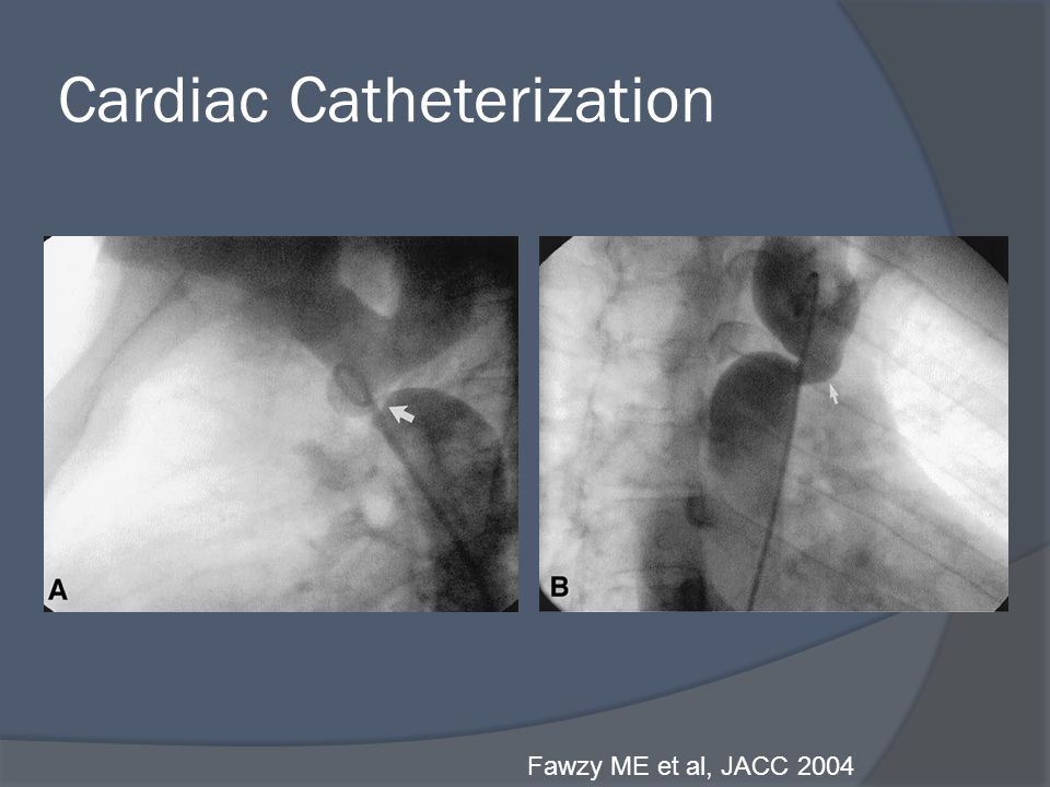 Cardiac Catheterization Fawzy ME et al, JACC 2004