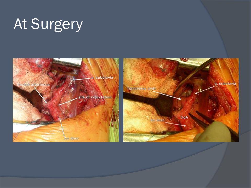At Surgery