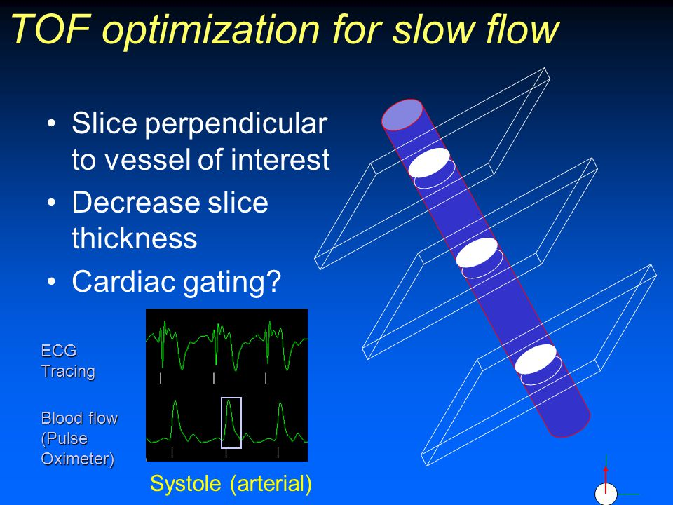 TOF optimization for slow flow Slice perpendicular to vessel of interest Decrease slice thickness Cardiac gating? ECG Tracing Blood flow (Pulse Oximet