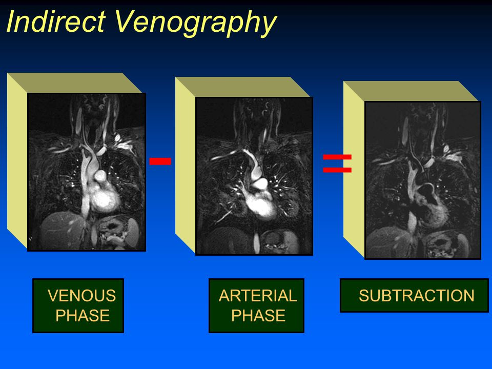Indirect Venography VENOUS PHASE SUBTRACTION - = ARTERIAL PHASE