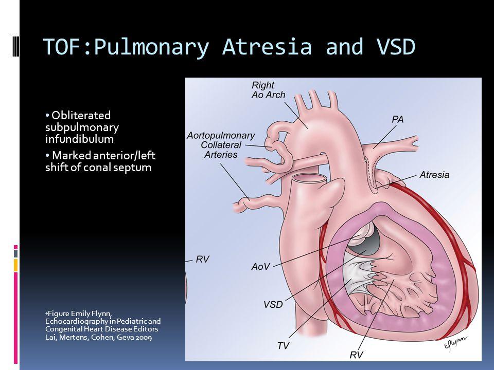 TOF:Pulmonary Atresia and VSD Obliterated subpulmonary infundibulum Marked anterior/left shift of conal septum Figure Emily Flynn, Echocardiography in