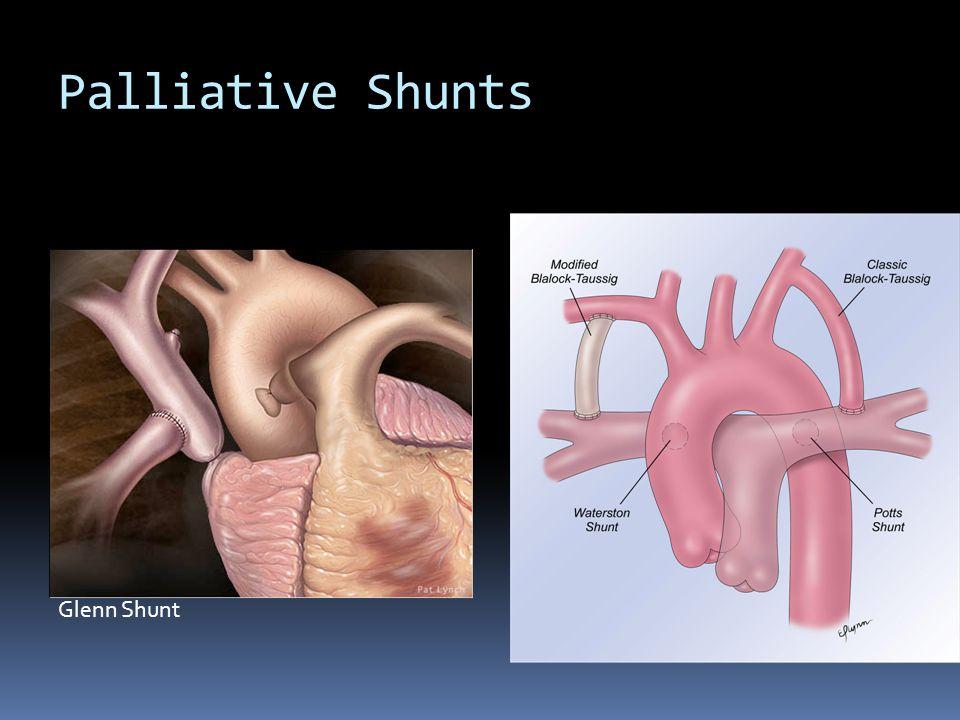Palliative Shunts Glenn Shunt