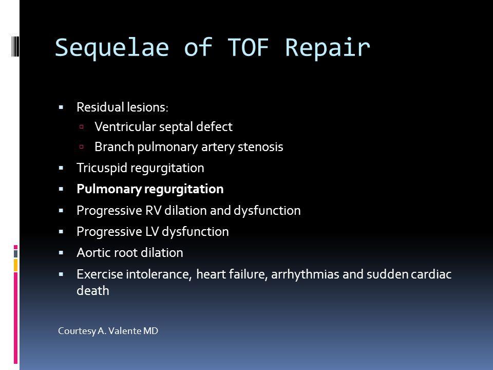 Sequelae of TOF Repair  Residual lesions:  Ventricular septal defect  Branch pulmonary artery stenosis  Tricuspid regurgitation  Pulmonary regurg