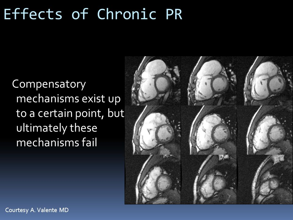 Effects of Chronic PR Compensatory mechanisms exist up to a certain point, but ultimately these mechanisms fail Courtesy A. Valente MD