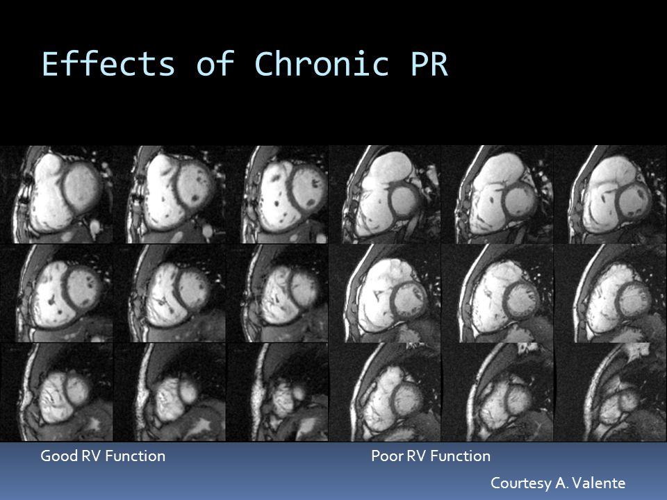 Effects of Chronic PR Good RV FunctionPoor RV Function Courtesy A. Valente