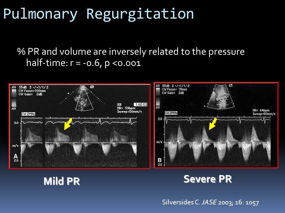Pulmonary Regurgitation % PR and volume are inversely related to the pressure half-time: r = -0.6, p <0.001 Mild PR Severe PR Silversides C. JASE 2003