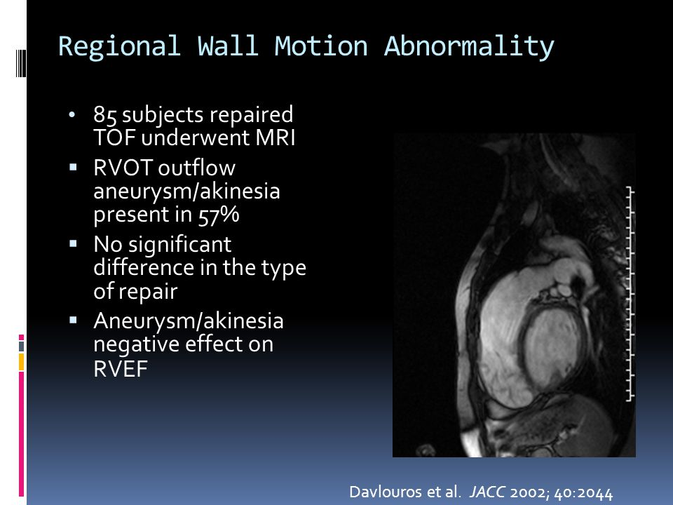 Regional Wall Motion Abnormality Davlouros et al. JACC 2002; 40:2044 85 subjects repaired TOF underwent MRI  RVOT outflow aneurysm/akinesia present i