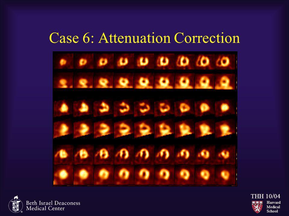 Harvard Medical School THH 10/04 Case 6: Attenuation Correction