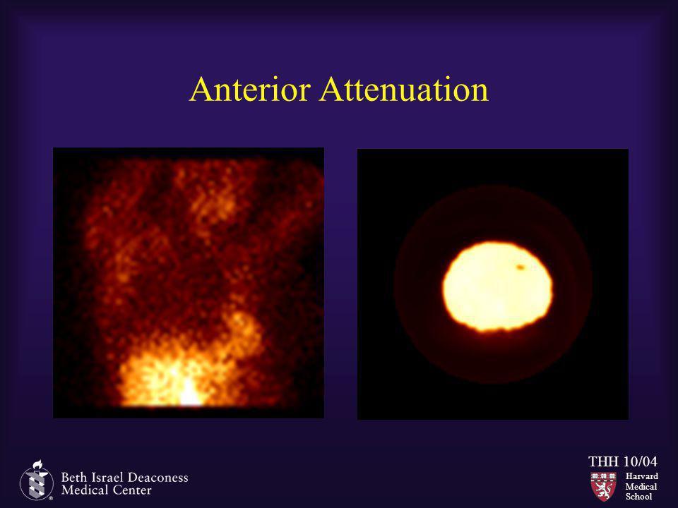 Harvard Medical School THH 10/04 Anterior Attenuation