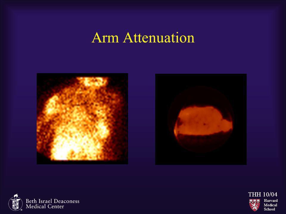 Harvard Medical School THH 10/04 Arm Attenuation