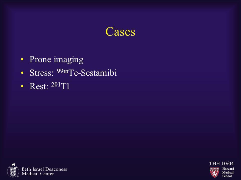Harvard Medical School THH 10/04 Cases Prone imaging Stress: 99m Tc-Sestamibi Rest: 201 Tl