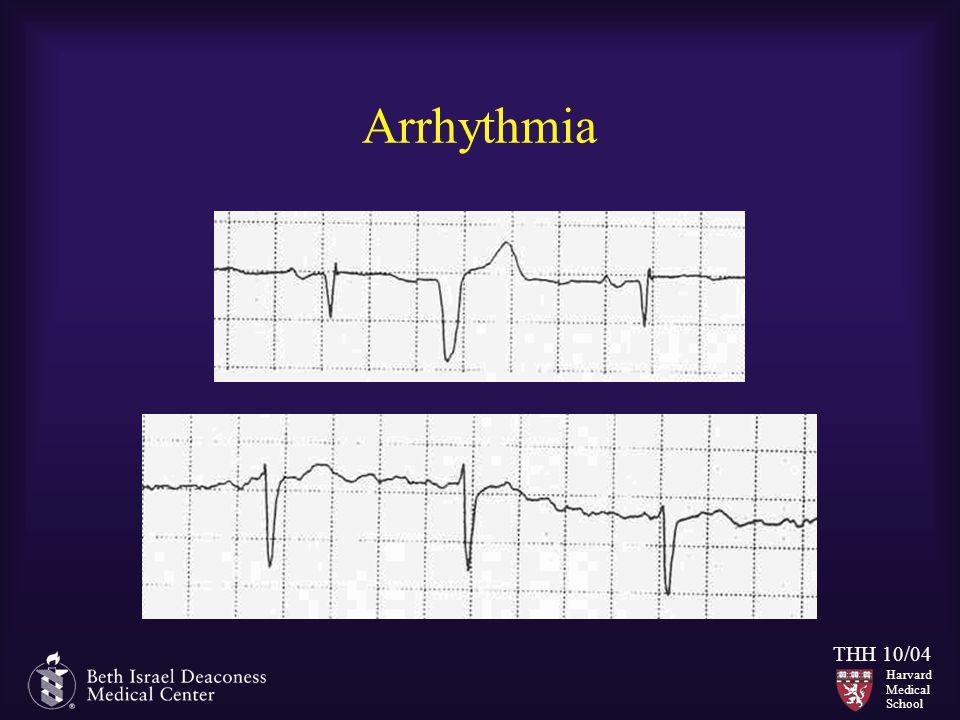 Harvard Medical School THH 10/04 Arrhythmia