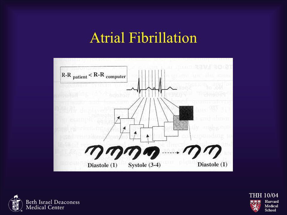 Harvard Medical School THH 10/04 Atrial Fibrillation