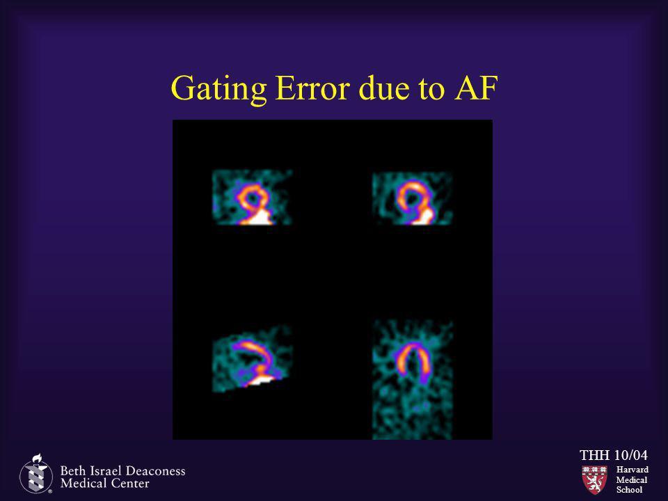 Harvard Medical School THH 10/04 Gating Error due to AF