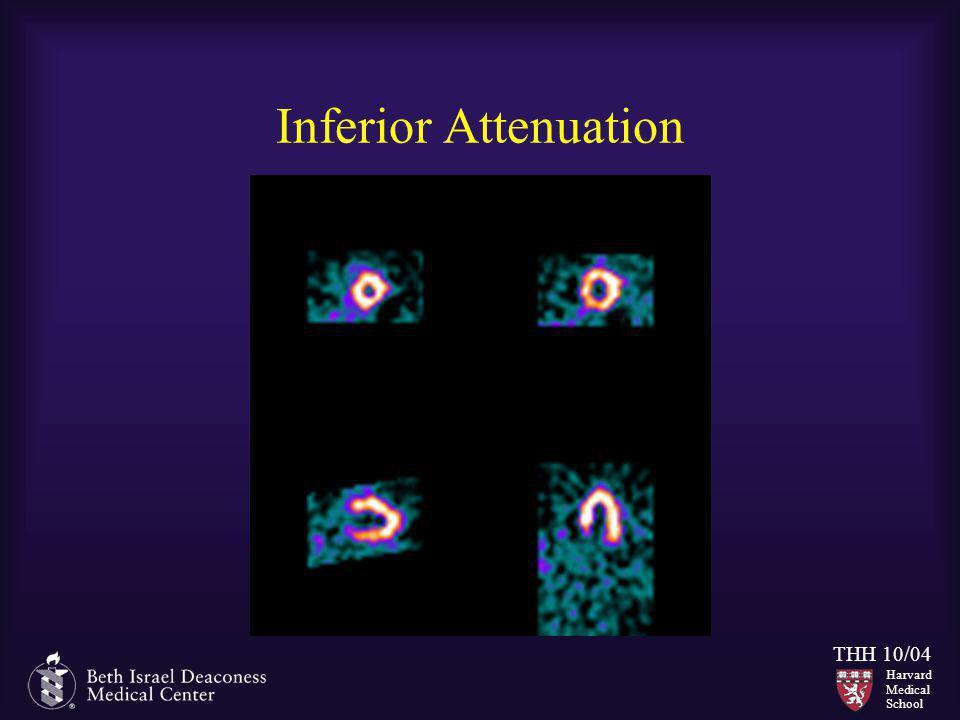 Harvard Medical School THH 10/04 Inferior Attenuation