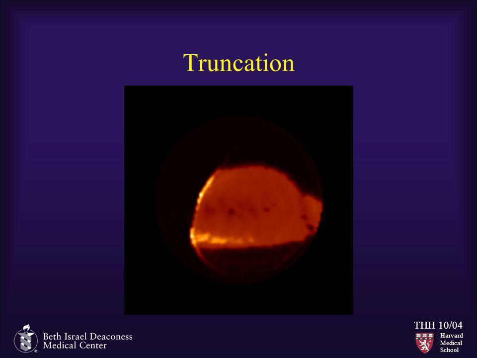 Harvard Medical School THH 10/04 Truncation
