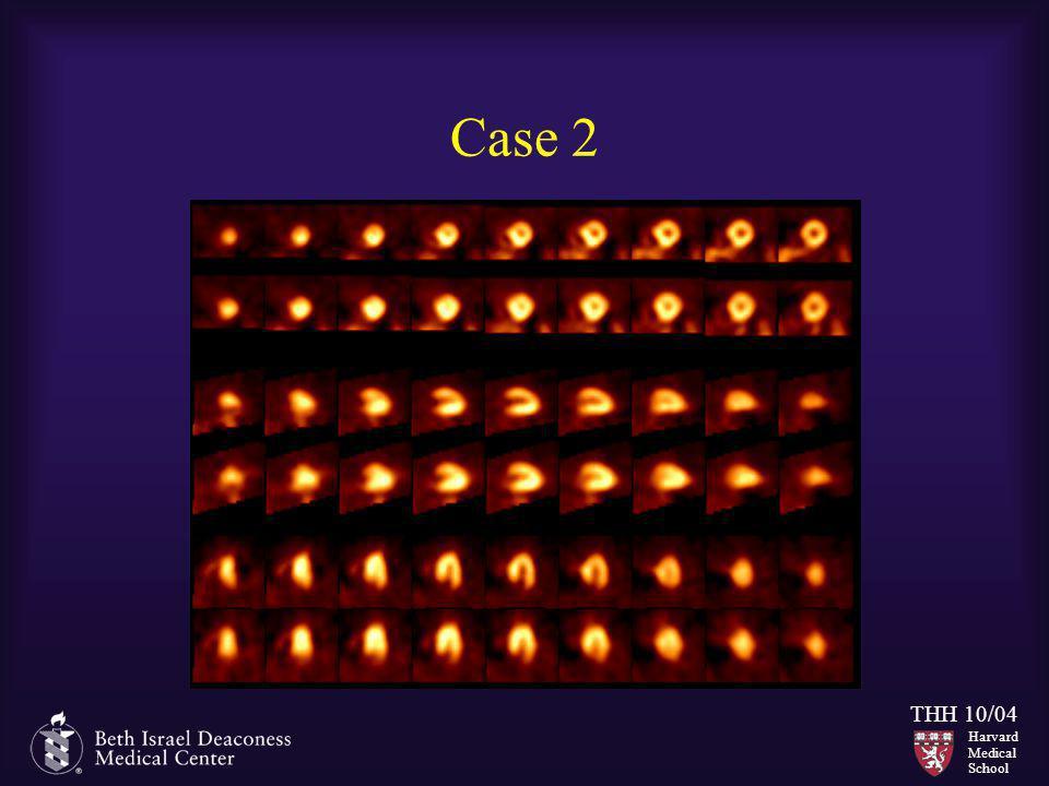 Harvard Medical School THH 10/04 Case 2