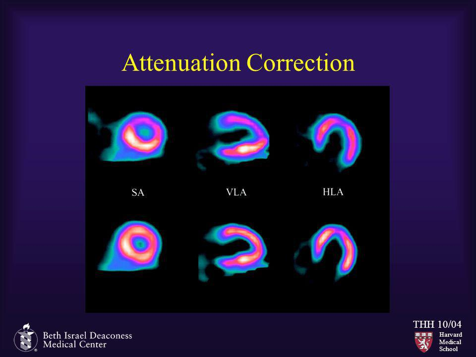 Harvard Medical School THH 10/04 Attenuation Correction