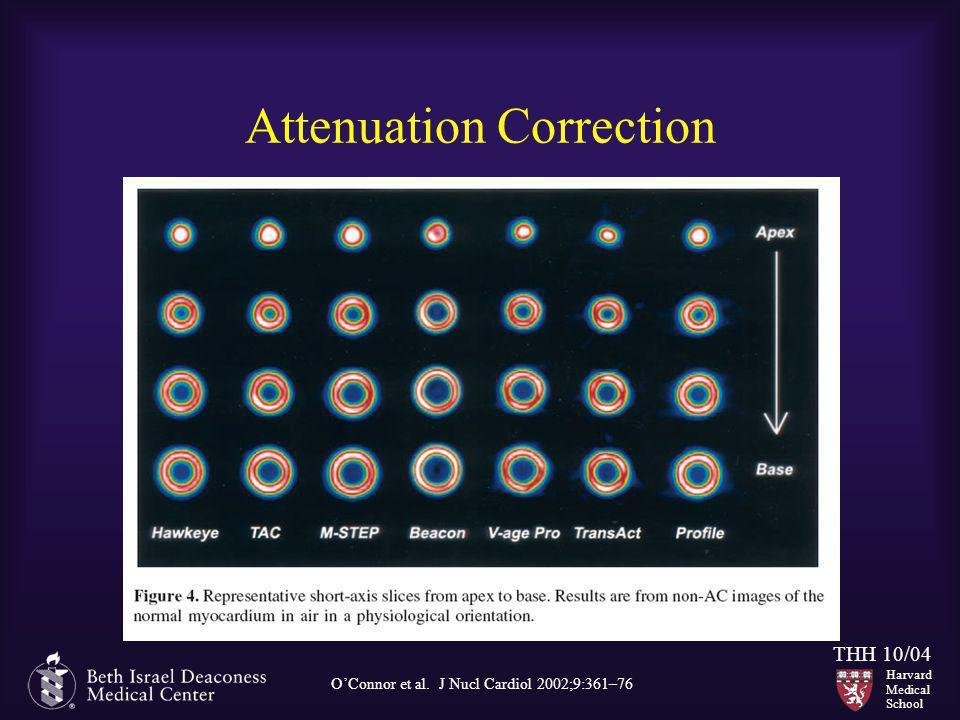 Harvard Medical School THH 10/04 Attenuation Correction O'Connor et al. J Nucl Cardiol 2002;9:361–76