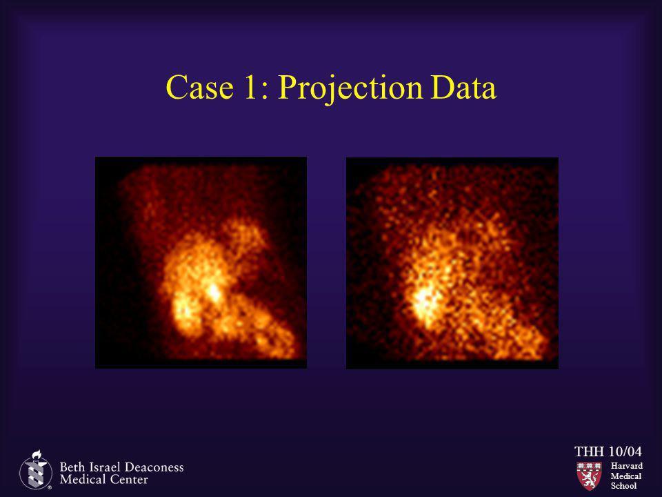 Harvard Medical School THH 10/04 Case 1: Projection Data
